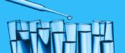 Analisi dell'acqua potabile e le sue caratteristiche